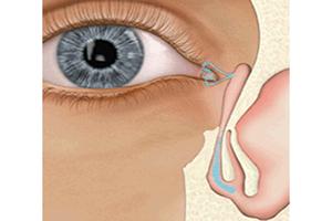 Avaliação das vias lacrimais