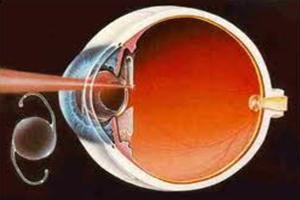 Capsulectomia com Yag Laser