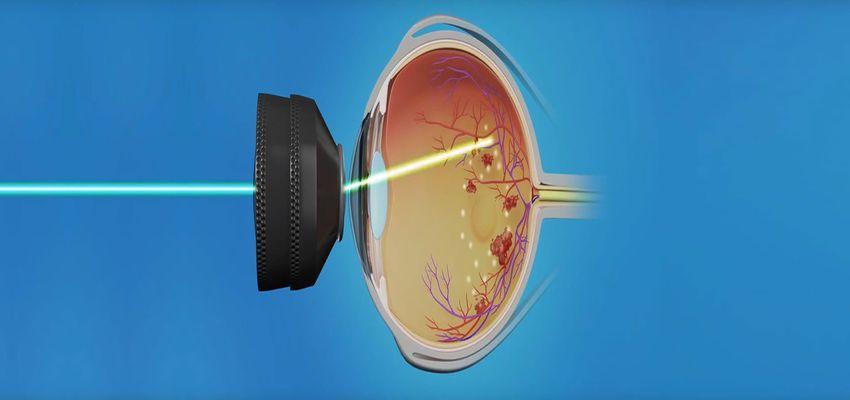 Fotocoagulação a Laser (Foto C)
