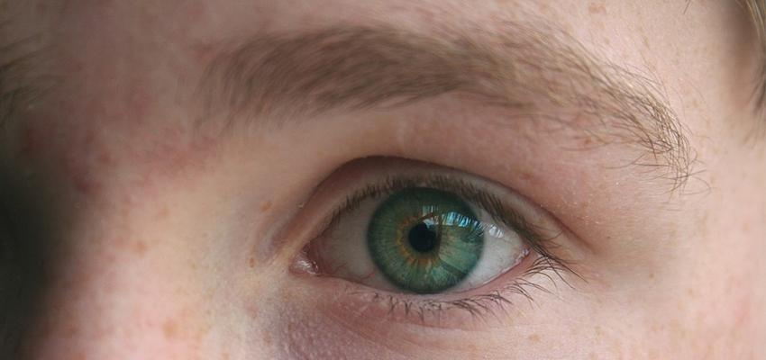 Queimadas e a saúde ocular: quais danos pode causar e qual a melhor forma de se previnir?