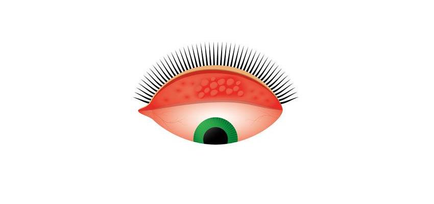 Tracoma: uma doença ocular que leva à cegueira, mas pode ser prevenida