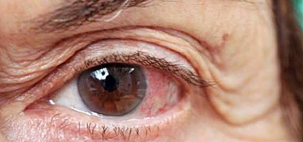 Colesterol alto pode afetar sua saúde ocular: saiba como identificar